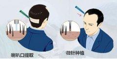 瑞士NAT美学植发技术突破传统植发,效果更加显著