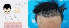 倍生植发:比技术,我们有瑞士NAT美学植发技术