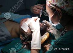 瑞士NAT美学植发技术:无痛无痕不剃发