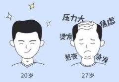 瑞士NAT美学植发是中国最好的技术吗