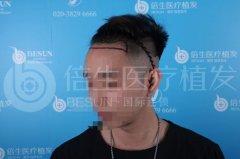 瑞士NAT美学植发技术在广州种植发际线效果最好